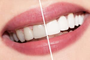 Before After sorriso sbiancamento dentale