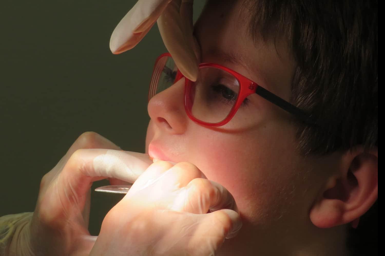 Ortodonzia intercettiva su bambino con occhiali rossi