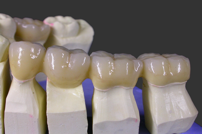 Studio Dentistico Pinzarrone Protesi Dentale